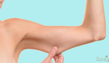 Lipektomija ruku (Brahioplastika) i nogu