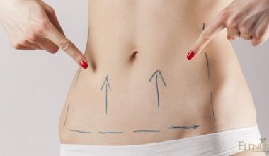 Zatezanje stomaka - Abdominoplastika