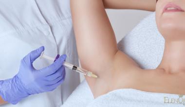 Lečenje prekomernog znojenja Botoxom