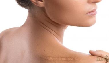 Korekcija ožiljaka i tetovaža